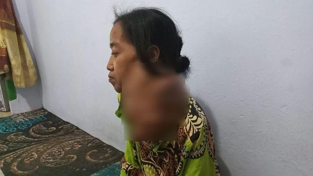 Urgent! 20 Tahun Leher Bu Hindun Dicekik Tumor Ganas